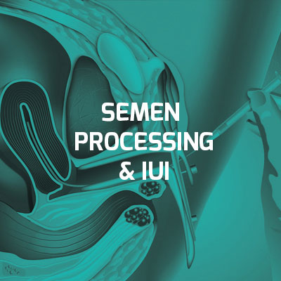 Male infertility - Semen Processing & IUI