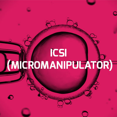 ICSI Fertilisation Technique