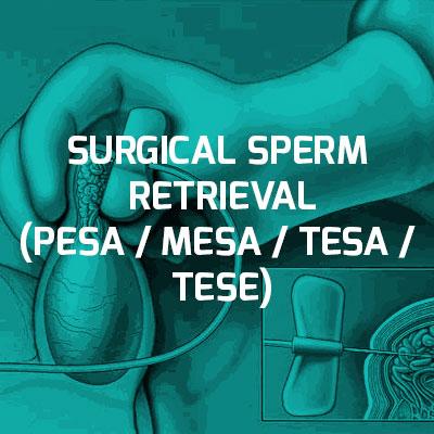 Treatmentofmale infertility