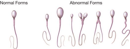 Sperm Morphology Test